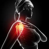 Illustration of shoulder highlighted shoulder pain — Stock Photo