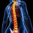 Royalty-Free Stock Photo: Female spine pain x-ray anatomy
