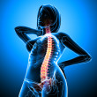 Female spine pain x-ray anatomy - Stock Photo