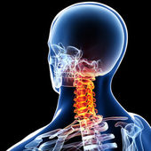 X-ray of neck pain — 图库照片
