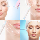 Young woman getting face lifting procedure — Stock Photo