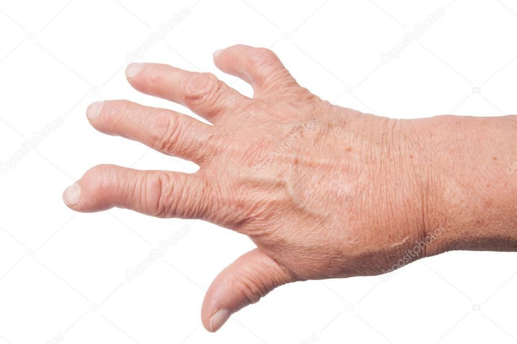 acuut reuma symptomen