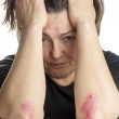 Woman with psoriasis — Stock Photo #47435755