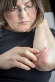 Psoriasis on elbow — Stock Photo