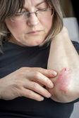Psoriasis on elbow — Stock Photo