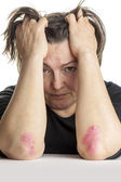 Woman with psoriasis — Stock Photo