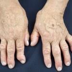 Hände der Frau an rheumatoider Arthritis verformt — Stockfoto #47744755