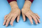 Hands Of Woman Deformed From Rheumatoid Arthritis — Stock Photo