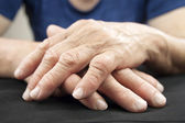 Hand Of Woman Deformed From Rheumatoid Arthritis — Stock Photo