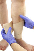 Varicose veins and bandage — Stockfoto