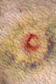 A hematoma from a paintball gun — Stock Photo