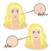 Girl face with acne — Stock Vector