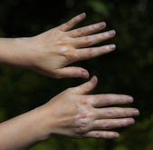 Hand with vitiligo skin condition — Stock Photo