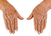 Hands of an old woman close-up — Stock Photo