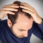 Man controls hair loss — Stock Photo
