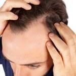 Man controls hair loss — Stock Photo #36677917