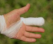Weiße medizin verband auf verletzungen der menschlichen hand finger — Stockfoto