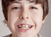 Happy teen with braces — Stock Photo