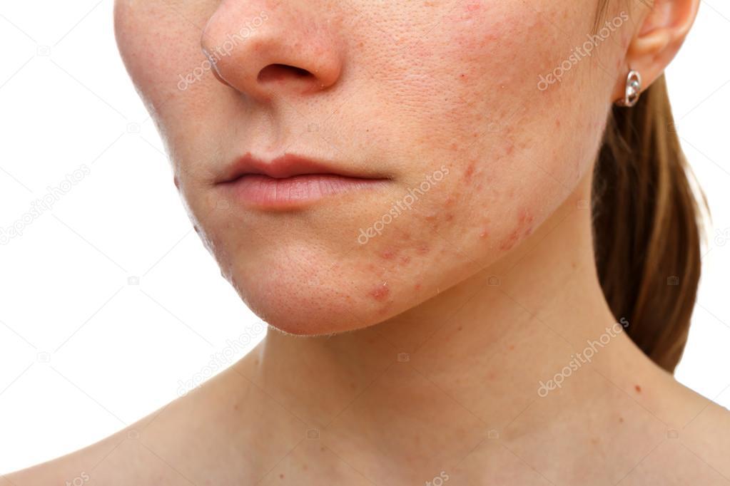 Жирная кожа лица симптомы