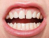 Diastema between the upper incisors — Stock Photo