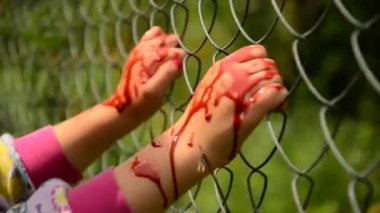 Child asks for help in blood. Violence against children. Child in the blood of the fence, asks for help — Wideo stockowe