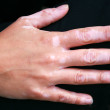 A hand with vitiligo skin condition — Stock Photo