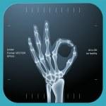 X-ray of both human hand — Stock Vector #18213699