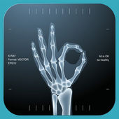 X-ray of both human hand — Stock Vector