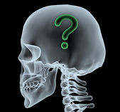 X-ray of a head with question mark — Stock Photo