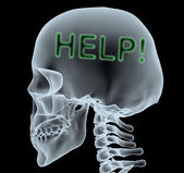 X-ray of a head with help written — Stock Photo