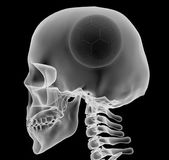 X-ray of a head with soccer ball instead of a brain — Stock Photo
