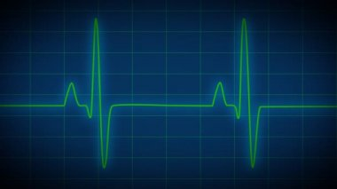 Heart Monitor EKG — Vídeo stock