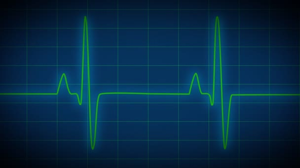 Corazón monitor ekg — Vídeo de stock