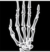 Xray Of Fingers On A Hand — Stock Vector