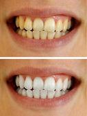 Healthy teeth — Stock Photo