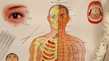 Chinese Medicine -  Acupuncture — Vídeo de stock
