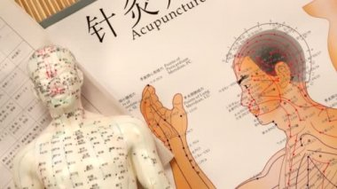 Alternative Medicine - Chinese Acupuncture — Stock Video
