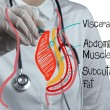 Doctor draws abdominal fat — Stock Photo