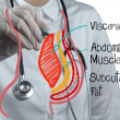 Doctor draws abdominal fat - Stock Photo
