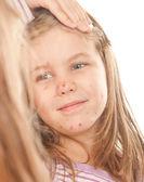 Garota do varicella — Fotografia Stock