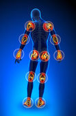 Joints pain - full figure — Stock Photo
