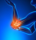 Elbow Pain Male - Side view — Stock Photo