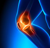 Painful Knee Close-up — Stock Photo