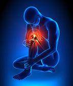 Human with knee pain — Stock Photo