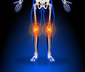 Human knee pain — Stock Photo