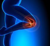 Knee Pain Superior View — Stock Photo