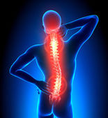 Male Hurt Backbone -Pain — Stock Photo