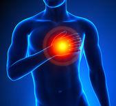 Heart-Attack Male — Stock Photo