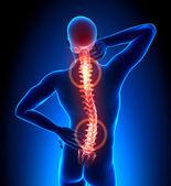 Männchen verletzt rückgrat - wirbel schmerzen — Stockfoto