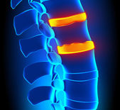 Osteophyte Formation Disc Degeneration - Spine problem — Stock Photo